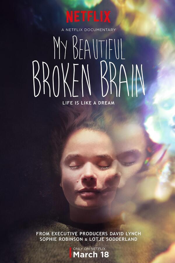 My Beautiful Broken Brain image