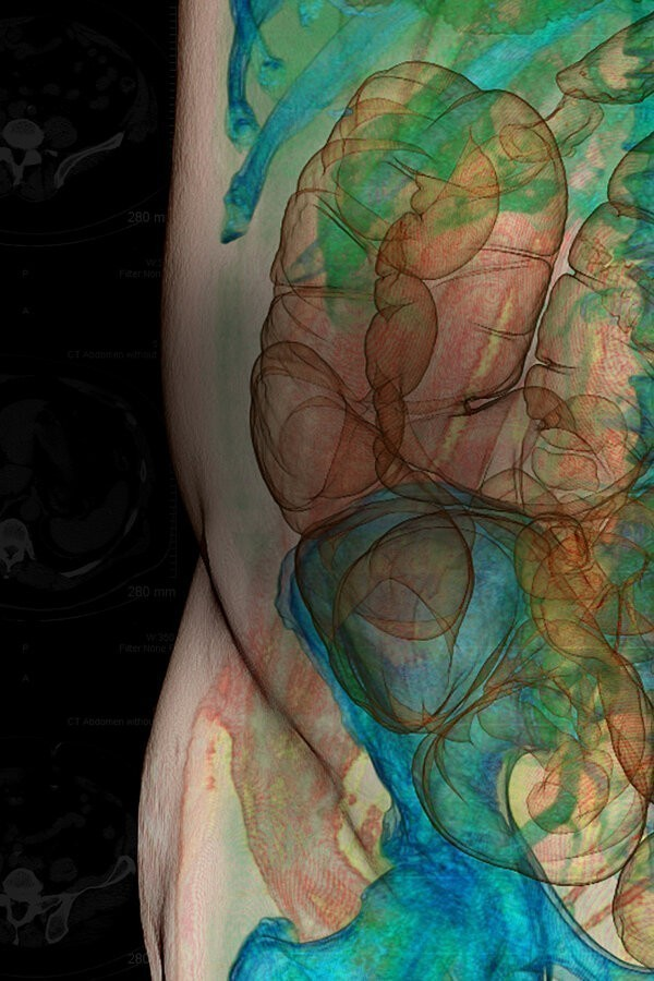 Guts: The Strange and Mysterious World of the Human Stomach image